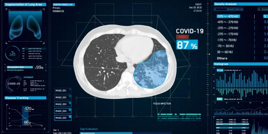 phân tích kết quả CT